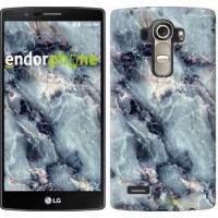 Чехол для LG G4 H815 Мрамор 3479u-118